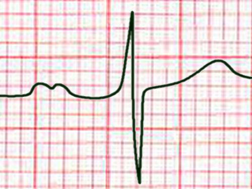 Std lead II enlarged left atrium ...  sc 1 st  Anaesthetist.com & The whole ECG - a really basic ECG primer